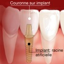 Implant dentaire Persan