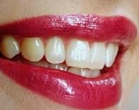 Esthétique dentaire à Persan