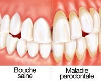 Parodontologie à Persan