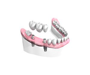 Remplacer plusieurs dents absentes ou abîmées à Persan