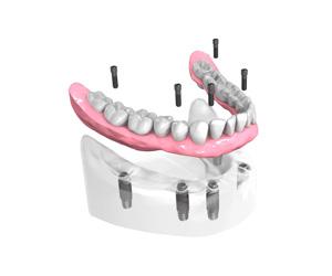 Remplacer toutes les dents absentes ou abîmées à Persan