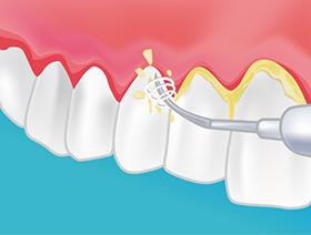 Traitement des parodontopathies